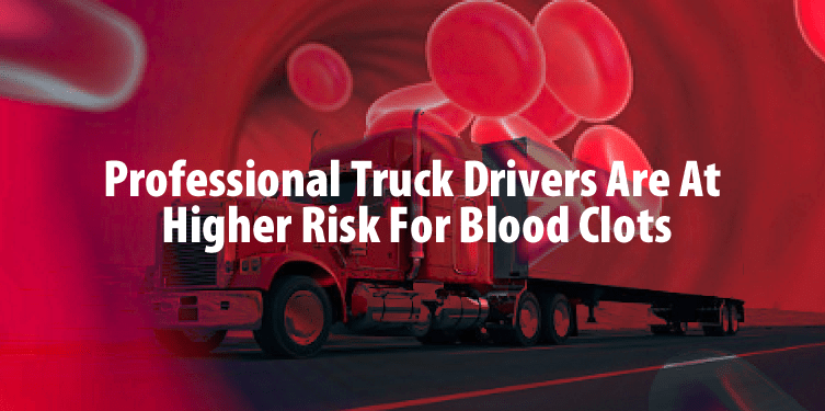 Professional Drivers & DVT: What You Need To Know in 2017