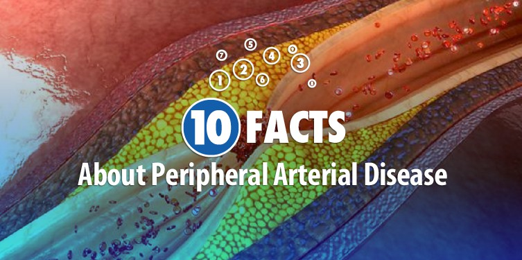 10 FACTS About Peripheral Arterial Disease – Part 2