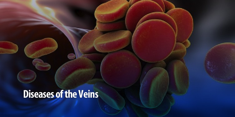 Diseases-of-the-veins-MD-DC-PA