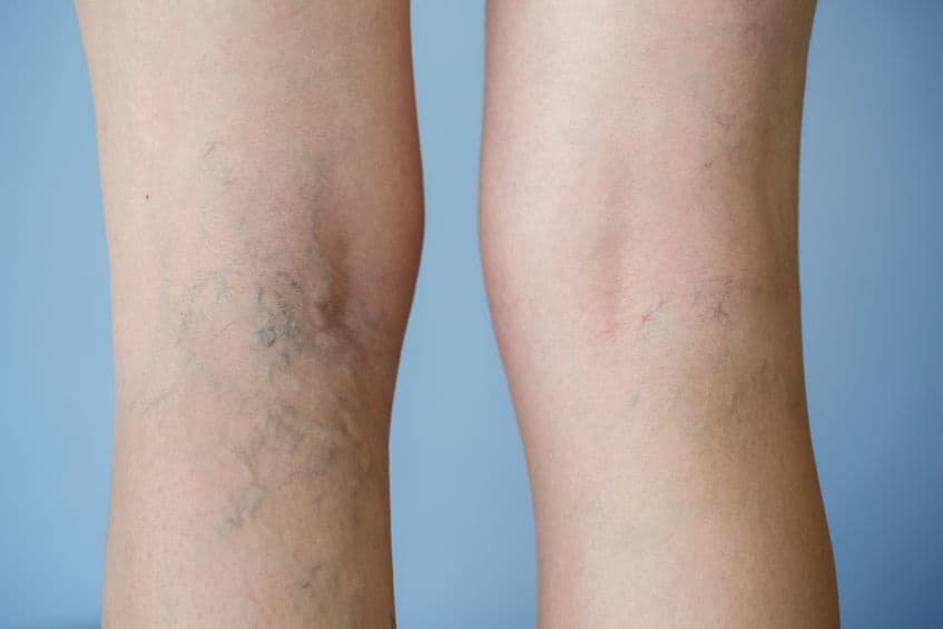 Are Varicose Veins More Than Cosmetic?