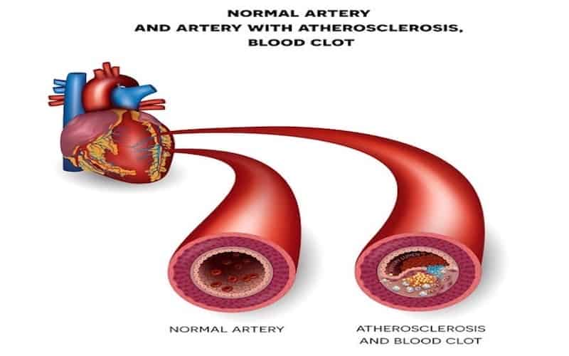 normal artery and artery with atherosclerosis blood clot