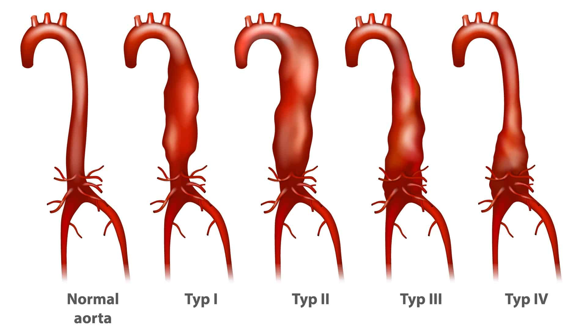 Abdominal Aortic Disease Stages