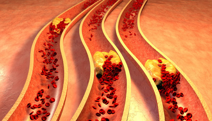 Arteriosclerosis and Atherosclerosis are Not Just About Heart Disease