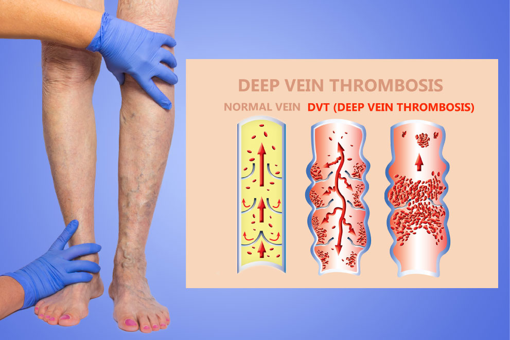 Deep Vein Thrombosis and Blood Clots in Your Legs